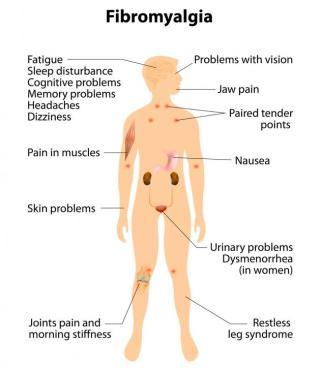symptoms-of-fibromyalgia.jpg