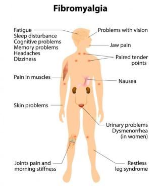 symptoms-of-fibromyalgia.jpg